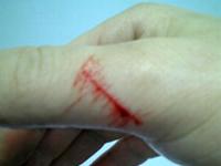 切り傷の例